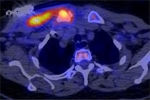 PET CT con FDG-F18 que evidencia aumento anormal del metabolismo en la pared torácica derecha de manera moderada a severa comprometiendo la articulación esternoclavicular con incremento de la densidad de la clavícula proximal y engrosamiento de los tejidos blandos alrededor de la articulación. Este incremento del metabolismo se extiende en forma lateral hacia los músculos pectorales derechos subyacentes al dispositivo de marcapaso, donde la actividad metabólica está mucho más elevada. Los hallazgos sugieren proceso inflamatorio – infeccioso.