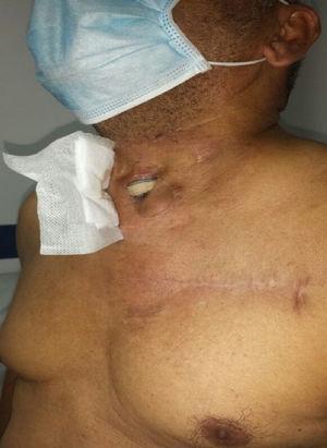 Exposición de injerto vascular infectado en cuello.