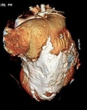 Reconstrucción tridimensional cardiaca en la que se evidencia la calcificación pericárdica con compromiso miocárdico del ventrículo izquierdo.