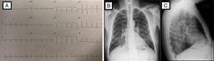 Estudios al Ingreso. A) Electrocardiograma: Taquicardia sinusal, eje -10°C, rS en DIII, aVF, pobre progresión r de V1-V3, Duración de PR, QRS y QTc normal, no elevación ST, depresión del ST de V4-V6. B y C) Radiografía de tórax PA y lateral: índice cardiotorácico normal, leve reforzamiento vascular parahiliar bilateral, infiltrado intersticial escaso bilateral y escaso derrame izquierdo posterior.