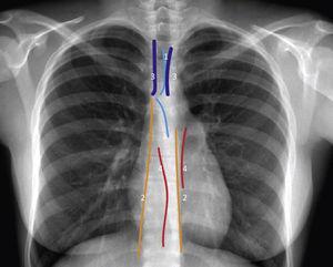 Líneas, bandas e interfaces del mediastino Esquema de radiografía de tórax con líneas, bandas e interfaces. Representación de líneas de unión superior-posterior e inferior-anterior (1); Líneas paraespinales (2), bandas paratraqueales (3) e interfaces azygo-aesofáceas y paraórticas (4).