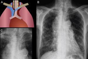 Banda paratraqueal derecha. Engrosamiento de ambas bandas paratraqueales, predominantemente la banda derecha, sugestivo de enfermedad del mediastino medio. Se identifica linfadenopatía paratraqueal asociada. Se confirmó carcinoma pulmonar de células pequeñas.