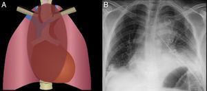 Ensanchamiento mediastinal Engrosamiento de las bandas paratraqueales, predominantemente banda derecha, sugestivo de enfermedad de mediastino medio. Linfadenopatía paratraqueal asociada. Se confirma carcinoma pulmonar de células pequeñas.