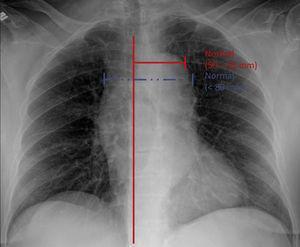 Medición del ancho mediastinal Medición del ancho mediastinal tradicional (líneas azules) y ancho mediastinal izquierdo (líneas rojas).