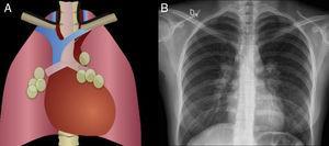 Linfadenomegalias A. Esquema y B. Radiografía que muestra engrosamiento de ambas líneas paratraqueales por múltiples linfadenopatías que comprometen el mediastino medio. Se confirmó sarcoidosis.