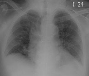 Desviación de la tráquea Desviación significativa de la tráquea a la derecha, secundaria a aneurisma de la aorta ascendente. Opacidades alveolares bilaterales por neumonía multilobar.
