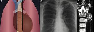Líneas paraespinales Ilustración (A) de las líneas paraspinales normales. La radiografía de tórax (B) demuestra una masa bien definida en el tercio superior del mediastino izquierdo, que se proyecta sobre el arco aórtico, originado de la línea paraspinal izquierda. La RM coronal con información T2 (C) muestra la misma masa paravertebral izquierda, que tiene una intensidad de señal heterogénea en un paciente con hematopoyesis extramedular. La visualización de la línea paraspinal izquierda es más frecuente que la línea derecha.