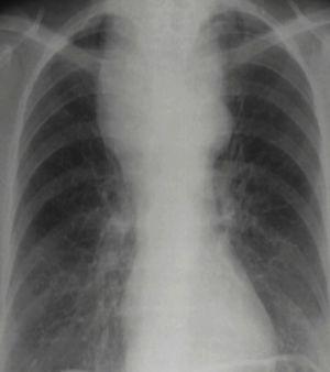 Sospecha de una masa mediastinal Radiografía de tórax donde se identifica una masa en el tercio superior del tórax, que muestra un efecto íntimo con estructuras mediastínicas. La masa condiciona desplazamiento de la tráquea. Presenta márgenes bien definidos y agudos con ángulos obtusos. Este paciente tiene un diagnóstico histológico de carcinoma tiroideo.