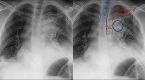 Desplazamiento del botón aórtico Desplazamiento del botón aórtico en la radiografía de tórax; Dibujamos un círculo verdadero a lo largo de la botón aórtico. La magnitud del desplazamiento aórtico se mide como la distancia entre el borde medial del círculo y el margen izquierdo de la columna aérea traqueal. En este paciente se observa un ADV (valor de desplazamiento aórtico) superior a 10mm. Se confirmó hemorragia mediastinal.