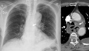 Distorsión del receso azigo esofágico Rectificación y desviación del receso azigo esofágico posterior, relacionado con proceso de mediastinitis y absceso mediastinal.