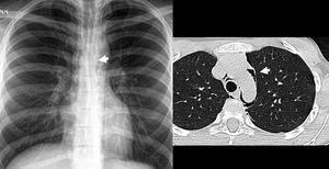 Aumento en la visualización de la línea anterior. Antecedente de trauma cerrado cervicotorácico. La radiografía de tórax muestra signos de neumomediastino y enfisema subcutáneo en región supraclavicular. Se puede identificar con más facilidad la línea de unión anterior relacionado con el neumomediastino(flecha).