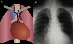 Distorsión de la línea de unión anterior A. Esquema que muestra la localización de la línea de unión anterior normal B. Masa en el tercio superior del mediastino anterior con borramiento de la línea de unión anterior, desplazamiento de la tráquea a la derecha y clara interfase con el pulmón, representando una masa mediastinal. El paciente es diagnosticado con bocio endotorácico.
