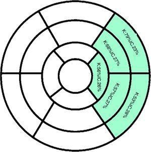 Concordancia de los diagnósticos de motilidad de segmentos irrigados por LCX realizados por ecocardiograma transtorácico y resonancia magnética cardiaca (k: valor calculado de kappa&#59; IC: intervalo de confianza para el coeficiente kappa). Fuente: Datos del estudio.