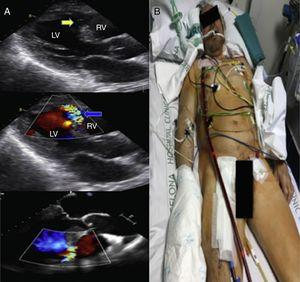 A transthoracic and transesophageal echocardiogram demonstrated drop out of the apical ventricular septum (Yellow arrow) and the presence of flow across the septum using color Doppler confirming the diagnosis of VSR. (Blue arrow) Severe left ventricular (LV) dysfunction and apical thinning compatible with a pseudoaneurysm were also noted. Figure 1 B A central veno-arterial ECMO was implanted as a bridge to emergent heart transplantation. The venous access was located at the right atrium and the arterial access at the right femoral artery.