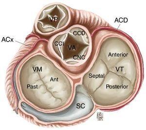 Anatomía de la válvula tricúspide. VT: válvula tricúspide, VM: válvula mitral, VA: válvula aórtica, VP: válvula pulmonar, SC: seno coronario, CCI: cúspide coronariana izquierda, CCD: cúspide coronariana derecha, CNC: cúspide no coronariana, ACx: arteria circunfleja, ACD: arteria coronaria derecha.