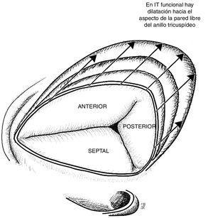 Válvula tricúspide vista desde la aurícula derecha. En la insuficiencia tricúspide funcional se evidencia dilatación progresiva del anillo hacia su aspecto anterior y posterior afectando progresivamente la coaptación, lo cual empeora la insuficiencia. Basado en estudio de Ton-Nu et al.17.
