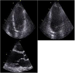 Paciente de 62 años con cuadro de presíncope y palpitaciones. ECO TT: VI dilatado con moderado compromiso de la función sistólica. FE: 30%. Disquinesia de los segmentos medios de todas las paredes, con hipoquinesia del resto de los segmentos. FCI – IC.
