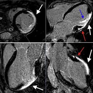 Resonancia magnética cardiaca – secuencias de realce tardío: Depósito focal de gadolinio transmural comprometiendo los segmentos medios de la pared anterior, anterolateral e inferolateral (flechas blancas). Depósito focal de gadolinio subepicárdico a nivel de los segmentos basales de la pared anterior y anterolateral (flechas rojas). Depósito focal de gadolinio comprometiendo el músculo papilar anterolateral (flecha azul). FCI – IC.