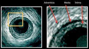 """En esta imagen se pueden observar las tres estructuras básicas en la imagen por IVUS """"tres capas"""". La capa en contacto con el lumen es la íntima; la media es la menos ecogénica y la adventicia es la capa más externa que la de mayor ecogenicidad. Tomado de: Tools and Techniques: Intravascular ultrasound and optical coherence tomography. Eurointervention. 2012;7."""