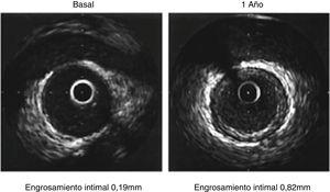 El primer panel evidencia un vaso con mínima proliferación neointimal que no compromete toda la circunferencia. En el segundo panel se muestra un engrosamiento significativo > 0,5mm y que compromete toda la circunferencia.