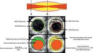 A. Segmento de referencia proximal. B, sitio de mayor estenosis Área luminal mínima (ALM). C, representa el cálculo del área de estenosis la cual compara el lumen de la estenosis con el lumen de referencia. D, representa la carga de placa que compara la estenosis del lumen con la lámina elástica externa MEE. Tomado de: J Am Coll Cardiol Int. 2011;4:1155– 67.