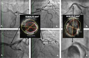 A. Lesión ambigua de tronco; en las diferentes vistas angiográficas, el IVUS evidencia lesión focal corta con ALM de 4,7mm2 en el tronco distal la cual se consideró severa. B. Lesión ambigua de tronco ostial; el IVUS evidencia ALM amplia de 15,7mm2 que descarta estenosis severa. La imagen angiográfica se consideró secundaria a la curva inicial del tronco en su origen.