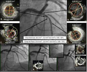 IVUS para decidir y guiar intervención en lesión intermedia en bifurcación entre la DA y primera Dg. A. Lesión intermedia en la DA con lesión severa en la primera Dg. Se realiza estudio con IVUS; B. Evidencia de placa en la bifurcación con la primera Dg con ALM de 3,5mm2, C. Evidencia lesión más severa en la DA con ALM de 3,0mm2. Teniendo en cuenta los segmentos de referencia proximal y distal D y E, se calculó un área de estenosis de 62% y carga de placa de 72% y una longitud aproximada de la lesión de 21mm. Se decide realizar angioplastia con dos stents utilizando técnica de doble kissing crush. Los recuadros inferiores muestran el implante inicial del stent de la primera Dg y posteriormente el stent de la DA, el IVUS post angioplastia F. evidencia malaposición del stent hacia las 5, la cual corrige después del kissing balón H. En el sitio de mayor estenosis se logra conseguir un ALM de 6,4mm2. G. que es mayor al 80% del ALM del segmento de referencia distal considerando adecuada expansión del stent.