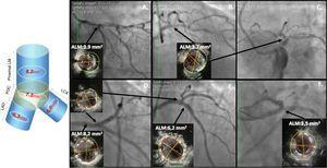 IVUS en angioplastia de tronco. Los recuadros superiores muestran una lesión severa de tronco distal que se extiende hacia el ramus intermedio y la DA proximal. Los tres recuadros inferiores muestran el resultado postangioplastia con las medidas del ALM en tronco proximal, carina, DA ostial y Cx ostial; todos con un resultado aceptable excepto en el ostium de la Cx donde el ALM ideal es 5,0mm2 y se obtuvo un ALM de solo 3,5mm2.