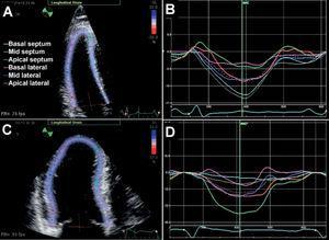 Deformación longitudinal del ventrículo izquierdo en pericarditis constrictiva y miocardiopatía restrictiva observada a través de método rastreo del moteado. Las paredes basales del septo y lateral muestran mecánica longitudinal normal en pericarditis constrictiva (A y B), pero reducida en miocardiopatía restrictiva (C y D). Por otro lado, el acortamiento longitudinal del ápice está reducido en pericarditis constrictiva (B), mientras que está preservado en miocardiopatía restrictiva (D).