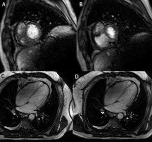 Resonancia magnética en tiempo real – imágenes obtenidas en diástole tardía en un paciente con pericarditis constrictiva. Imágenes obtenidas durante espiración (A y C) y durante inspiración (B y D), que muestran los cambios en los volúmenes de VD y VI debido a interdependencia ventricular exagerada.