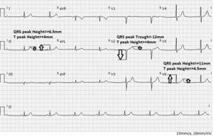 Criterios de medición del QRS-T en el electrocardiograma. Medición de la amplitud del complejo QRS y la onda T en milímetros, a partir del segmento TP. Tomado con permiso del Dr. Daniel Cortez.