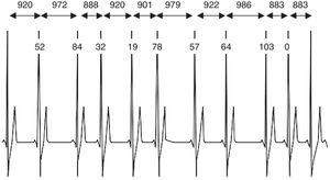 Ejemplo de un trazado de ECG con más de once complejos QRS. Se muestran los tiempos de intervalo R-R y la diferencia entre los intervalos R-R adyacentes. Fuente: Achten et al., 2003 (5).