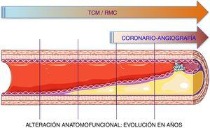 Representación de la utilidad de la tomografía coronaria multicorte y de la resonancia magnética cardiaca en la evaluación y función del árbol coronario. La angiografía coronaria permite evaluar la luz del vaso, pero la tomografía coronaria multicorte también permite estudiar el compromiso de la pared vascular desde etapas muy tempranas del desarrollo de la enfermedad aterosclerótica.