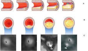 Esquema representativo de la evolución de la placa aterosclerótica. Panel superior (A) cortes longitudinales de la arteria. Panel intermedio (B) cortes transversales del segmento correspondiente donde se observa el compromiso del lumen vascular y la presencia del calcio en la placa. En el panel inferior (C) la visualización por tomografía coronaria multicorte () correspondiente a cada corte transversal. L= lumen; Ca= calcio.