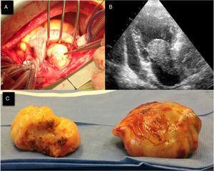 Rabdomiosarcoma. A. Foto intraoperatoria en la que se aprecia tumor en la aurícula izquierda y ruptura de la pared libre. B. Vista transtorácica dos cámaras en la que se observa masa tumoral con infiltración de la pared auricular izquierda y adhesión a la válvula mitral con diámetros de 58mm x 32mm y derrame pericárdico asociado. C. Tumor resecado en el que se ven dos piezas anatómicas de gran tamaño, las cuales infiltraban la aurícula y se extendían hasta el pericardio. Cortesía: Servicio de Cardiología No Invasiva, Hospital Manuel Uribe Ángel. Envigado, Antioquia.