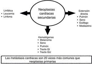 Mecanismos de diseminación de las neoplasias cardíacas secundarias.