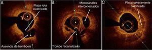 Lesiones complicadas con hemorragia y/o trombosis tras cicatrización. (A) Placa rota cicatrizada: capa fibrosa rota en ausencia de trombosis coronaria. (B) Trombosis luminal recanalizada: múltiples canales interconectados, separados por septos de tejido fibroso. (C) Placa con calcificación severa concéntrica.