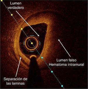 Disección coronaria y hematoma intramural.