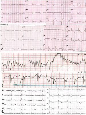 Evolución temporal del trazado electrocardiográfico del caso presentado. En el primer trazado (A) (día 1) se evidencia la presentación inicial con patrón de elevación del segmento ST en la cara inferior. En el segundo trazado (B) (día 3) se observa alteración de la repolarización en las derivadas precordiales con ondas T invertidas y profundas, además de la prolongación del intervalo QT. El tercer trazado (C) (día 13) representa el segundo ingreso a urgencias, cuando la paciente presentó paro cardiorrespiratorio secundario a una arritmia maligna: taquicardia ventricular polimórfica, que se revierte con desfibrilación. El cuarto trazado (D) (día 15) muestra la persistencia de la alteración de la repolarización miocárdica y del intervalo QT prolongado más allá de la etapa subaguda de la enfermedad.