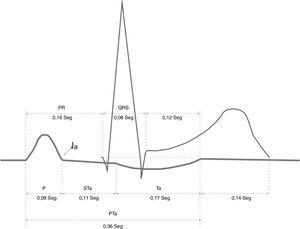 Potenciales de acción en el ECG. STa: segmento entre el final de la P hasta la onda de repolarización auricular. Ta: onda de repolarización auricular. PTa: sumatoria de STa y Ta. Modificado de Alderete, 1999.
