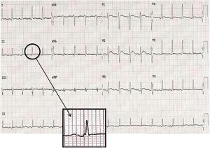Electrocardiograma en el que se aprecian alteraciones en la repolarización representadas por onda P bifásica con muesca en la porción ascendente que se observan con mayor claridad al amplificar un fragmento de DII.