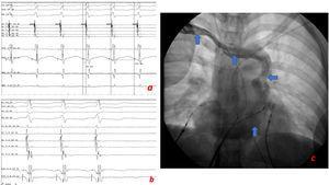 A. Taquicardia clínica VA 12ms descartando AVRT, con VH largo y HA corto que sugiere AVRNT típica. B. Taquicardia espontánea que termina con la activación auricular, sugiriendo bloqueo en el nodo AV. C. Proyección de oblicua anterior izquierda; venografía desde el brazo derecho que muestra el flujo (flechas azules) de la vena subclavia derecha, la vena innominada, la vena cava superior izquierda y el seno coronario; también la venografía señala la ausencia de vena cava superior derecha.