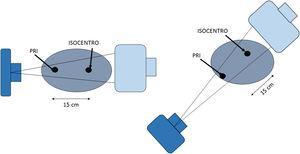 Geometría del punto de referencia intervencionista (PRI) y el isocentro.