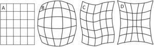 """Representación de las distorsiones típicas de los II y que no se presentan con los detectores de panel plano; en A se muestra el objeto de prueba que consiste en una malla rectangular, en B, C y D se muestran las distorsiones denominadas tipo """"barril"""", tipo S y tipo cojín."""