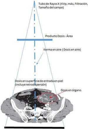 El Kerma y la dosis dependerán de los factores de exposición, KVp, mAs, filtración total (inherente más agregada) y la colimación. La dispersión de los rayos X, debido al efecto Compton, es la responsable de la dosis ocupacional en los médicos intervencionistas.