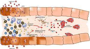 Modelo gráfico de las consecuencias de la infección de COVID-19. El virus SARS-CoV-2 se une a los receptores ACE2; en los individuos predispuestos desencadena una tormenta de citoquinas por la elevada secreción de IL-6 y otras citoquinas. Los niveles de fibrinógeno aumentan y se ocasiona así un estado protrombótico que conlleva lesiones isquémicas en tejido cardiaco, pulmonar y renal.
