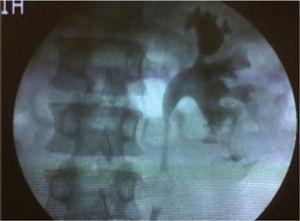 Pielografía retrograda que muestra pequeña extravasación del medio de contraste por el cáliz inferior izquierdo.