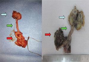 Espécimen quirúrgico producto de nefroureterectomía. Flecha roja: cecoureterocele. Flecha verde: uréter. Flecha azul: riñón displásico.