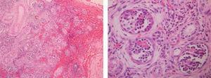 Histopatología espécimen quirúrgico; riñón, hipoplasia y displasia. Parénquima renal con arquitectura distorsionada; se identifican a menor aumento estructuras glomerulares con hiperplasia parietal.