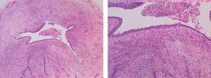 Uréter proximal, arquitectura habitual asociado a infiltrado inflamatorio.